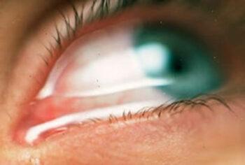 Alles over tranende ogen