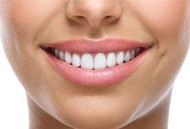 Witte-tanden-zonder-bleken
