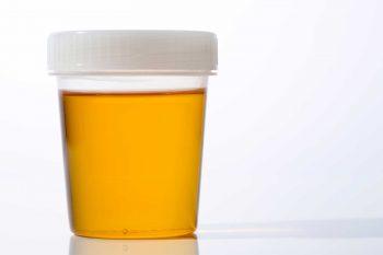 Urine kan vele kleuren hebben