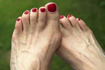 Hallux valgus, één van de meest voorkomende voetklachten