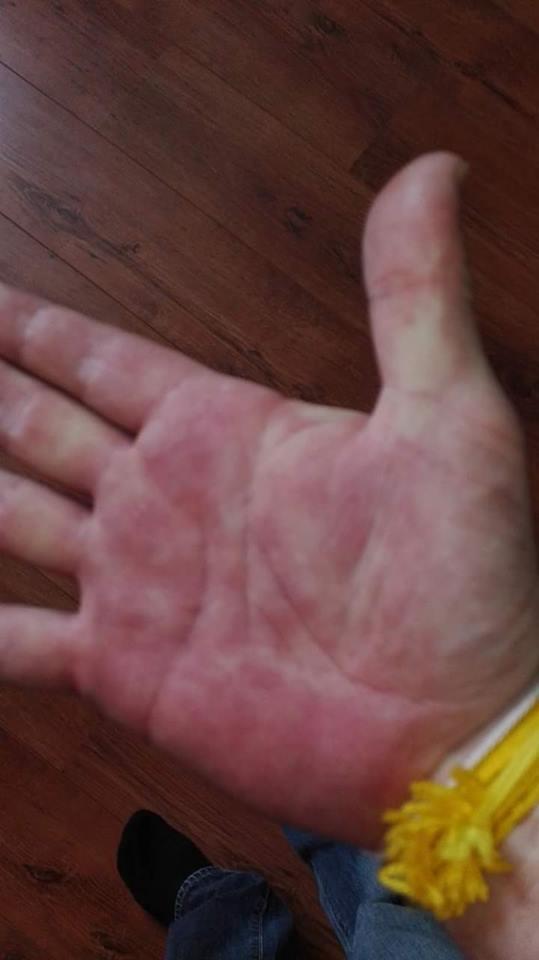 rode uitslag handen