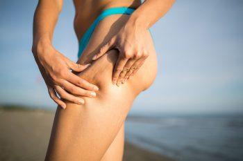 Wat kun je zelf doen tegen cellulite?