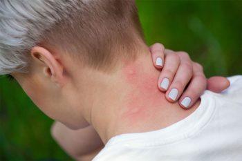 Remedie tegen muggenbulten