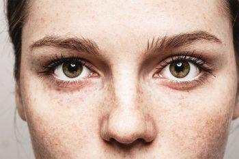 Oorzaken van jeukende ogen