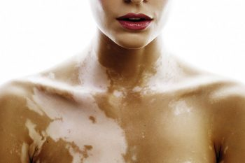 Vitiligo, wat is de oorzaak van deze huidaandoening?