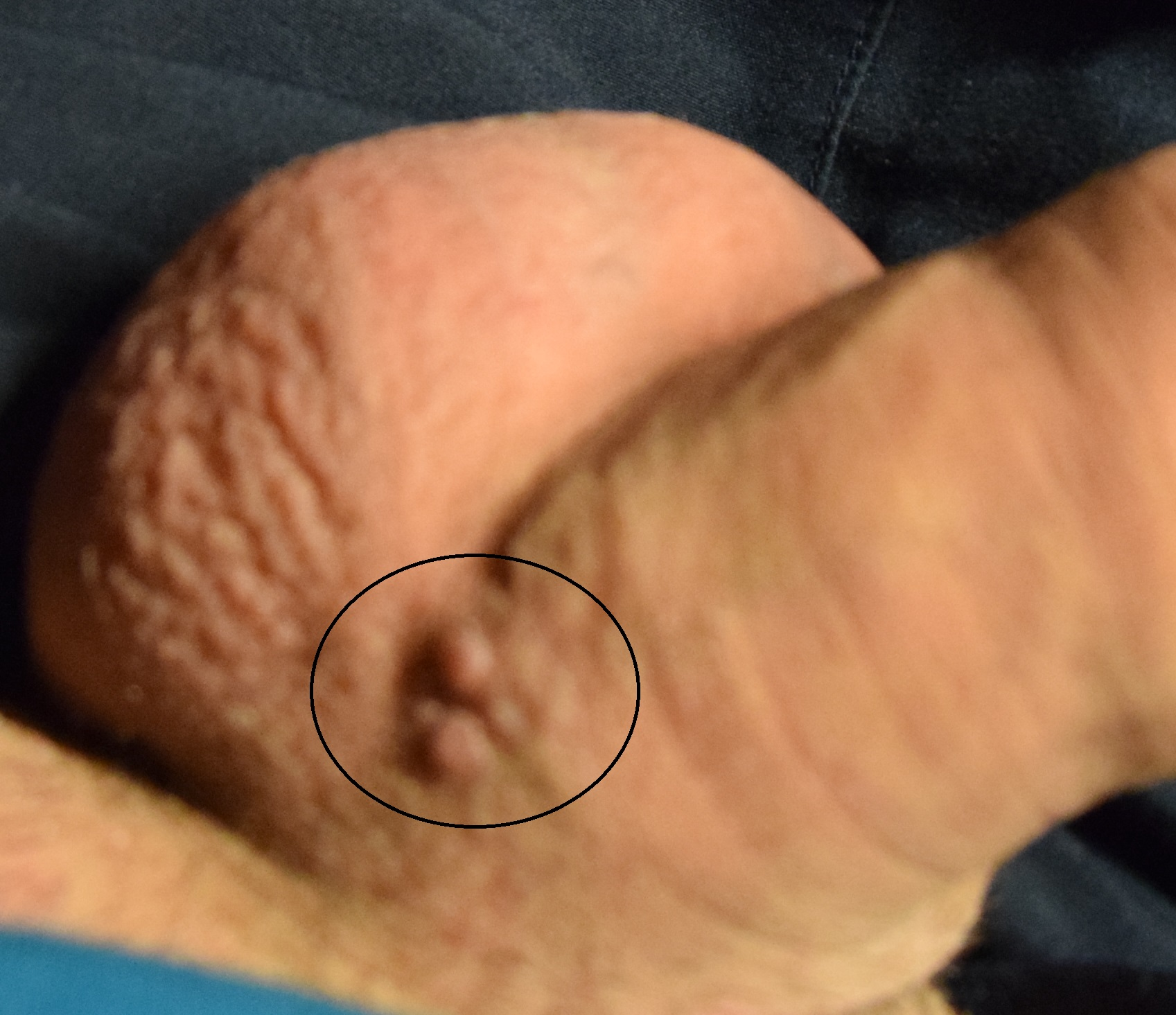 Penis talg TALG