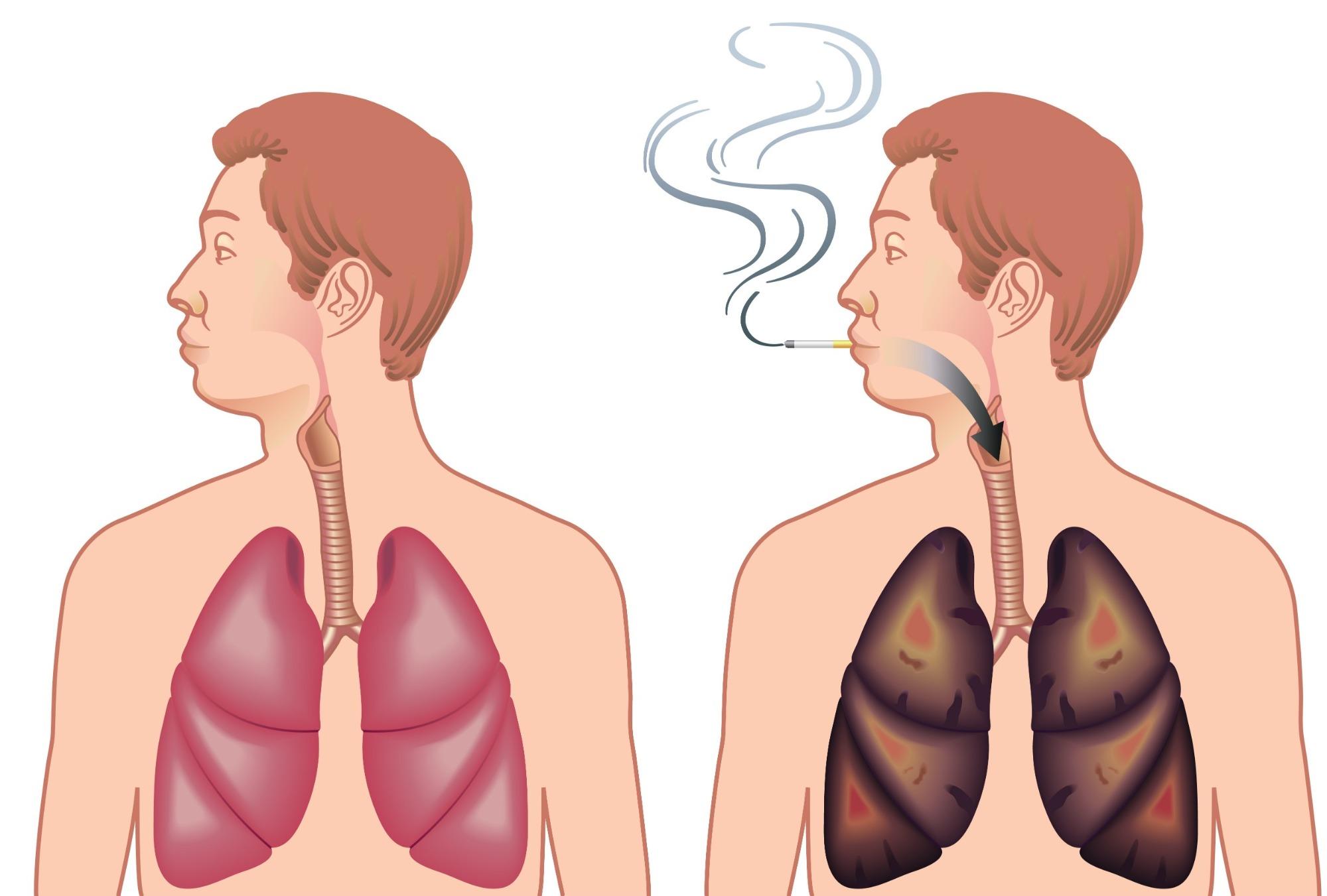 Hoe herstellen jouw longen zich wanneer je stopt met roken?