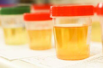 Oorzaken van bloed in urine
